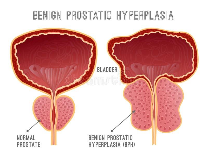 Enfermedad Infographic de la próstata stock de ilustración
