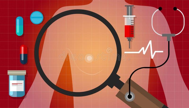 Enfermedad médica de la curación de la atención sanitaria de la anatomía de la medicación de la mujer del cáncer de pecho stock de ilustración