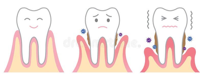 Enfermedad periodontal ilustración del vector