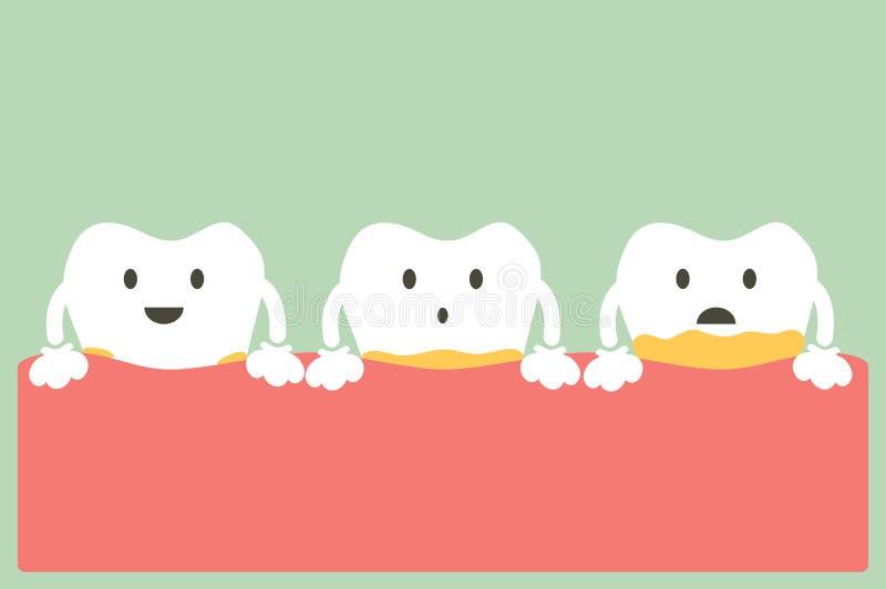 Enfermedad periodontal con la placa o el tártaro ilustración del vector