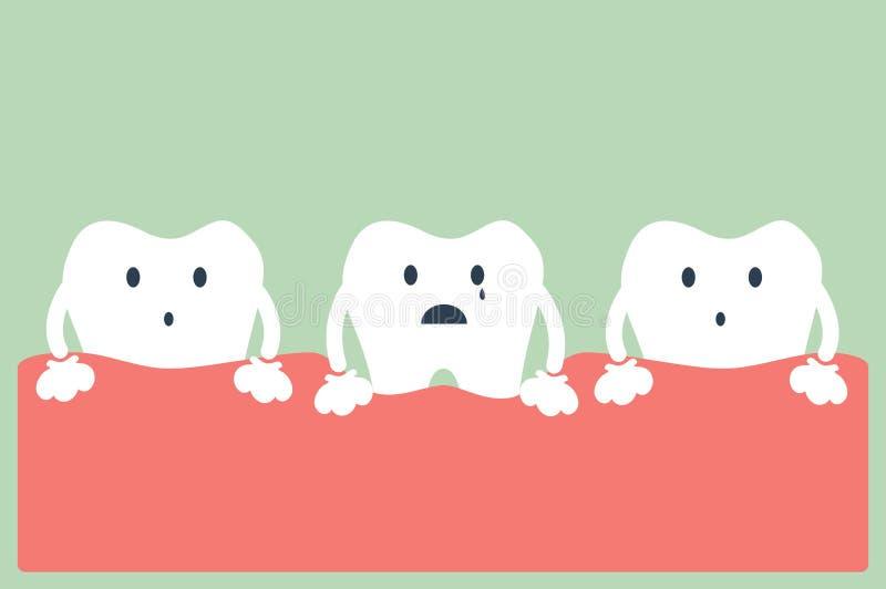 Enfermedad periodontal del diente stock de ilustración