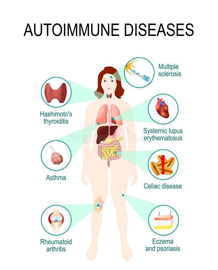 Enfermedades autoinmunes ilustración del vector
