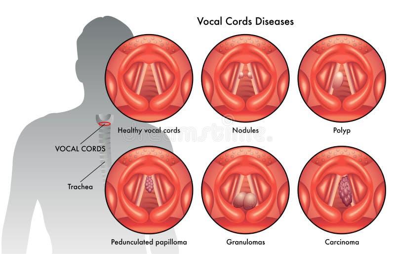 Enfermedades Del Cordón Vocal Ilustración del Vector - Ilustración ...