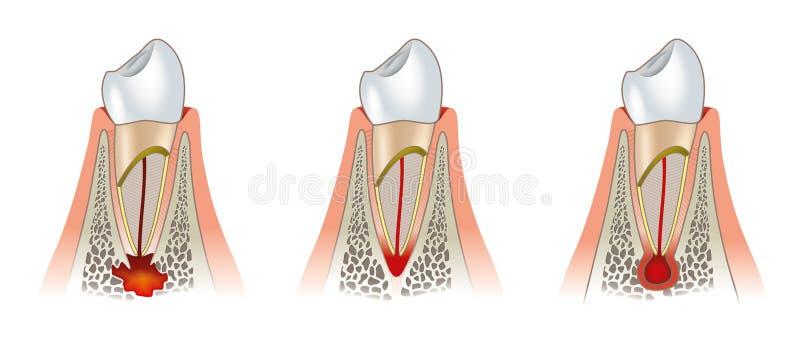 Enfermedades del esquema dental de los dientes. Periodontitis libre illustration