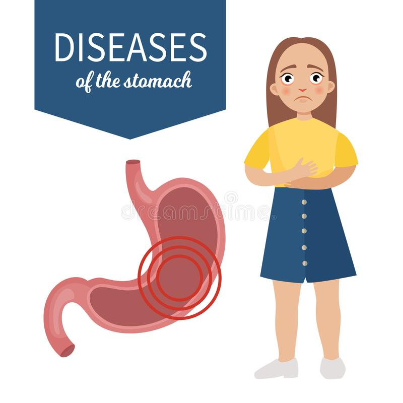 Enfermedades del estómago stock de ilustración