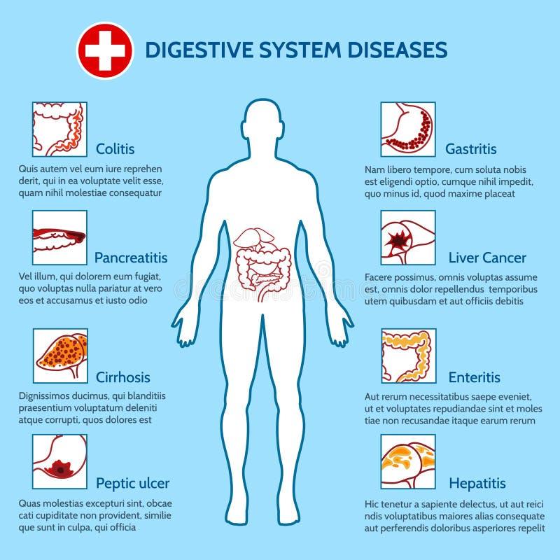 Enfermedades humanas del sistema digestivo ilustración del vector