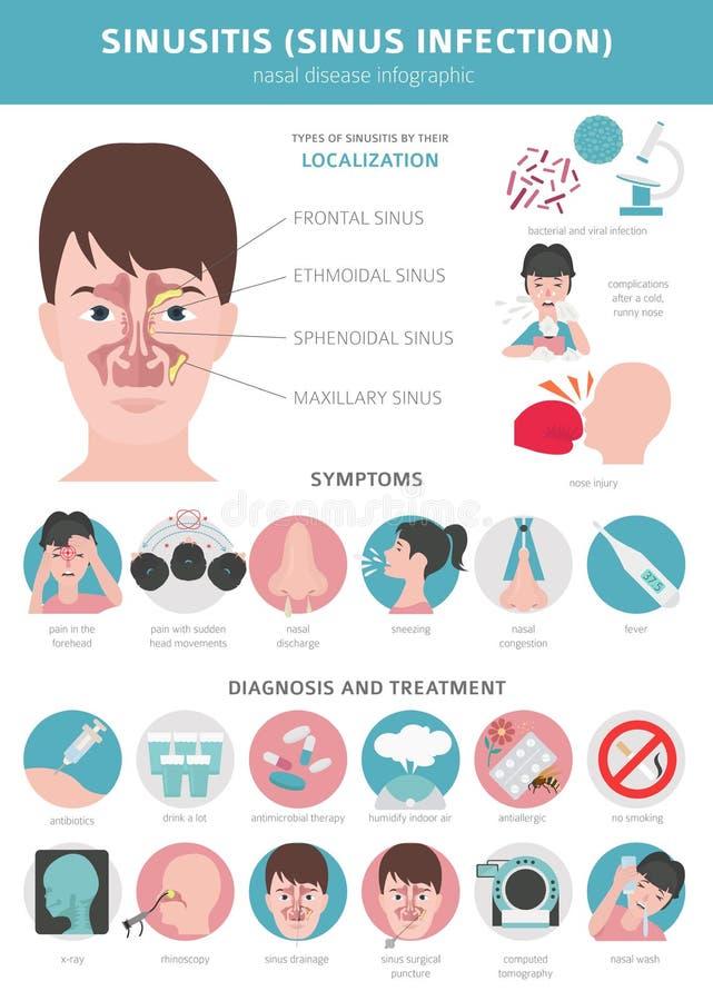 Enfermedades nasales Sinusitis, diagnosis de la infección del sino y diseño infographic médico del tratamiento stock de ilustración