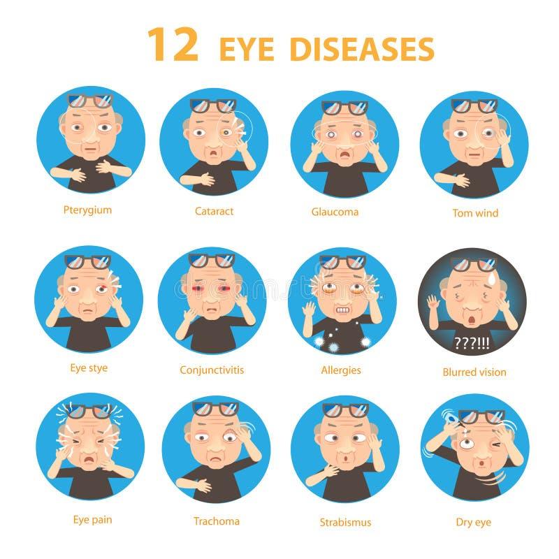 Enfermedades oculares ilustración del vector