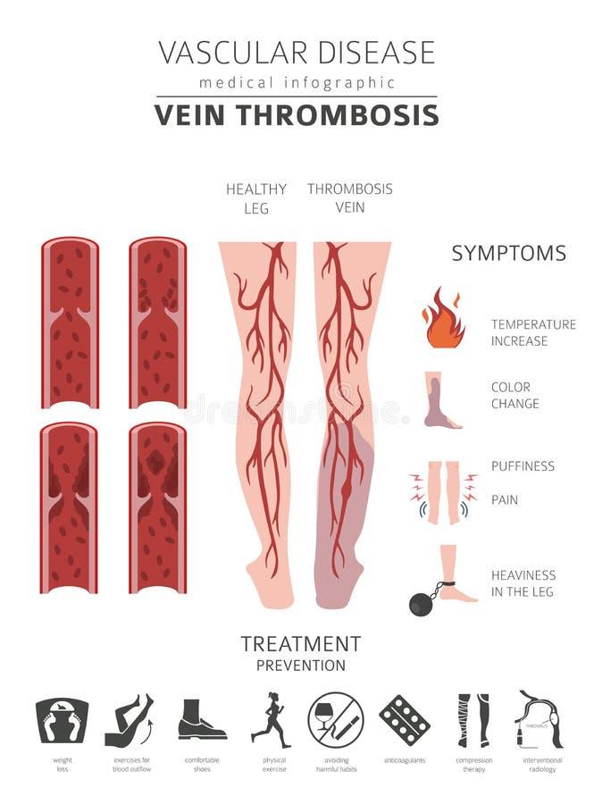 Enfermedades vasculares Síntomas de la trombosis de la vena, sistema del icono del tratamiento ilustración del vector