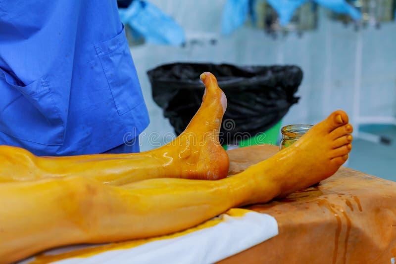 a enfermeira e o doutor preparam a prontidão paciente na solução antisséptica da sala da cirurgia na pele fotografia de stock royalty free