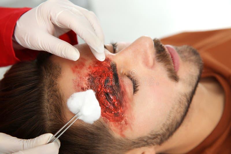 Enfermera que limpia la lesión en la cabeza del hombre joven en la clínica, primer imagenes de archivo