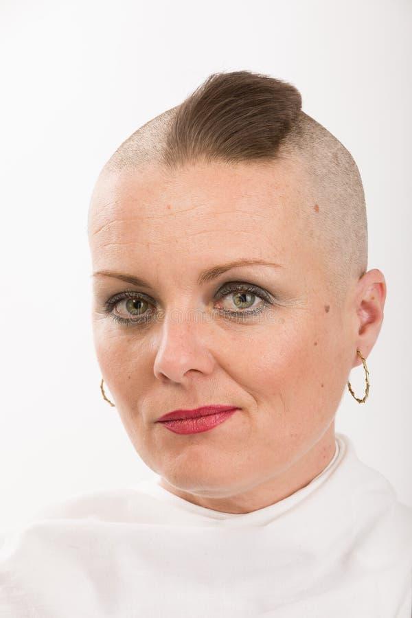 Enfermo de cáncer hermoso de la mujer foto de archivo libre de regalías