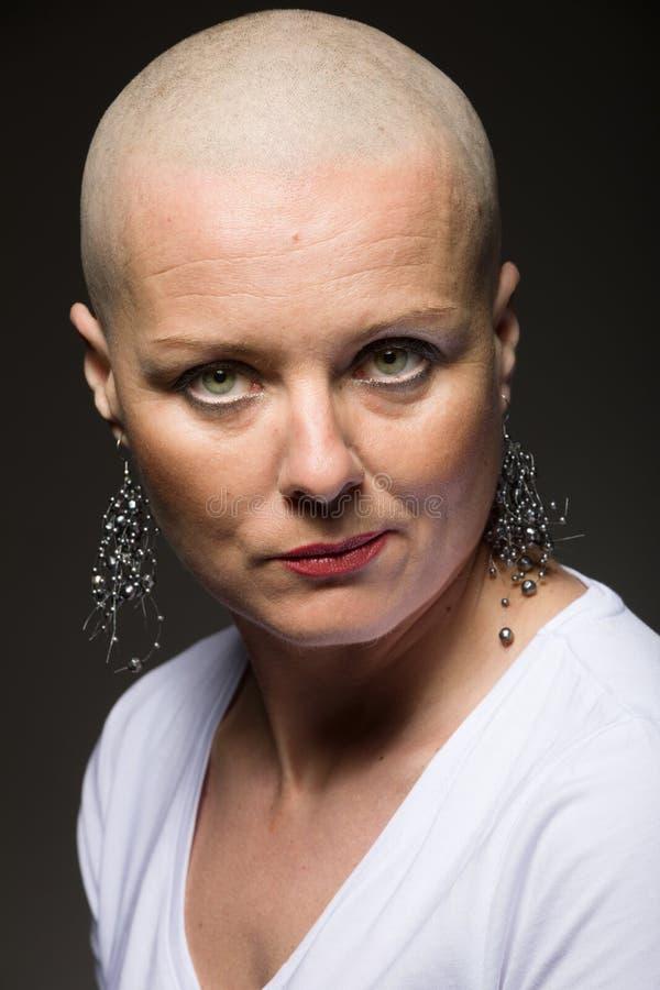 Enfermo de cáncer hermoso de la mujer sin el pelo foto de archivo