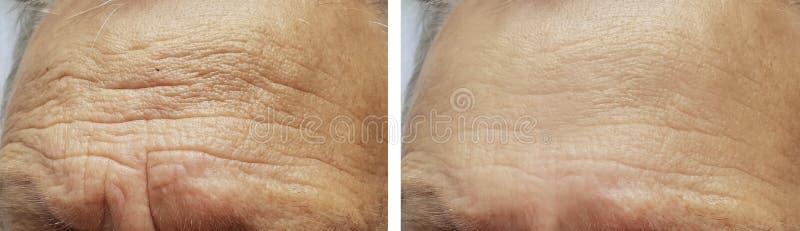 Enfrente a cara idosa dos enrugamentos da testa do homem antes e depois dos procedimentos fotos de stock royalty free