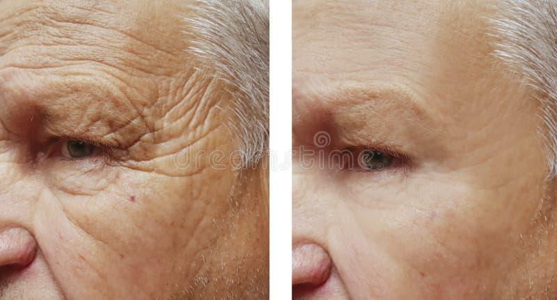 Enfrente a cara paciente da terapia dos enrugamentos da testa do homem idoso antes e depois dos procedimentos foto de stock