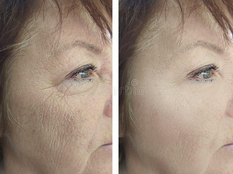 Enfrente o adulto uma remoção idosa da pigmentação da diferença do revitalização da cosmetologia da mulher antes e depois do trat fotografia de stock