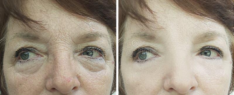 Enfrente o adulto uma remoção idosa da pigmentação da diferença do revitalização da mulher antes e depois do tratamento foto de stock
