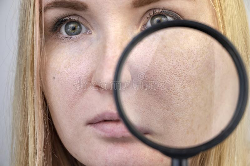 Enlarged pores, black spots, acne, rosacea close-up on the cheek. A woman is being examined by a doctor. Dermatologist examines. Enlarged pores, black spots royalty free stock images