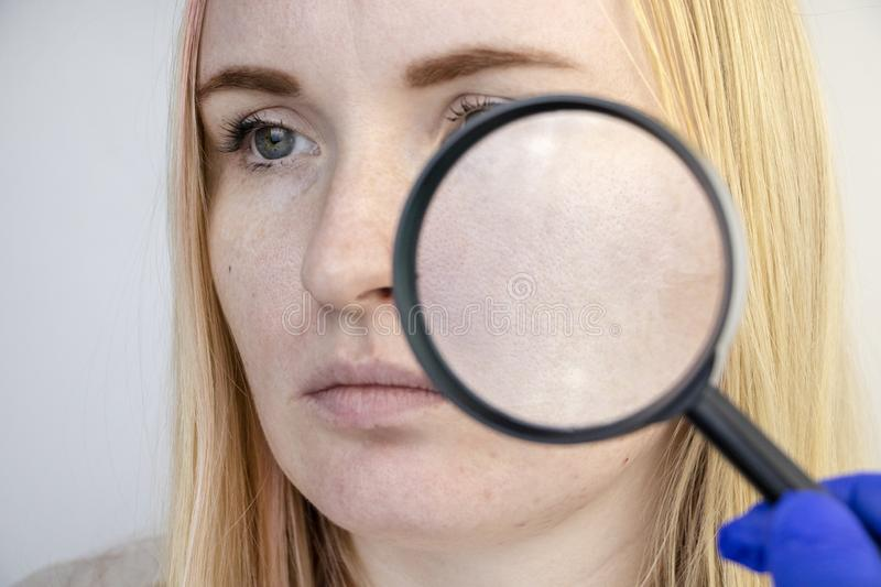 Enlarged pores, black spots, acne, rosacea close-up on the cheek. A woman is being examined by a doctor. Dermatologist examines royalty free stock photo
