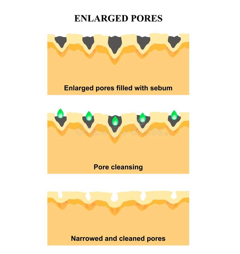 Enlarged pores. The structure of the skin. Wrinkles, acne scar. Cleansing and narrowing the pores. Infographics. Vector. Illustration on isolated background vector illustration