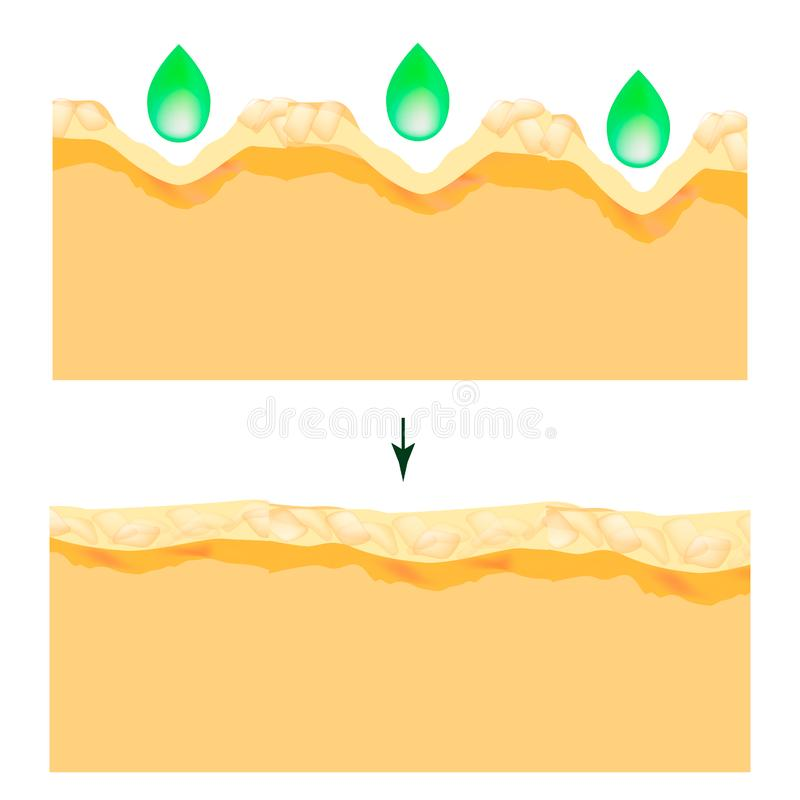 Enlarged pores. The structure of the skin. Wrinkles, acne scar. Cleansing and narrowing the pores. Infographics. Vector. Illustration on isolated background stock illustration