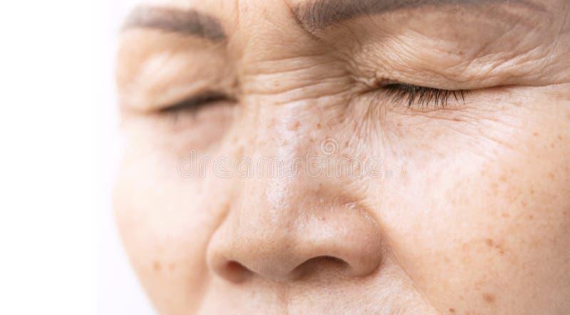 Enrugado da pálpebra asiática velha da pele da mulher imagem de stock