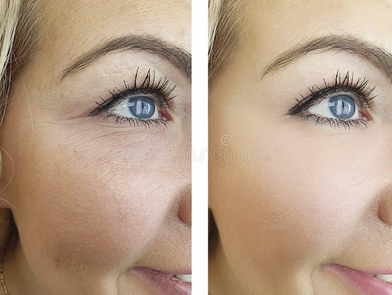 Enrugamentos antes e depois da diferença da pele da idade, resultados de levantamento da correção fotos de stock
