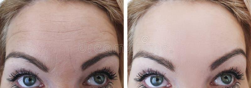 Enrugamentos antes e depois da diferença da pele, resultados de levantamento da correção imagens de stock royalty free