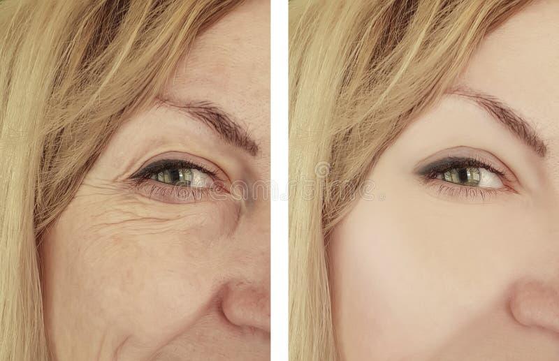Enrugamentos antes e depois da terapia da cosmetologia da correção, tratamentos de envelhecimento da mulher do biorevitalization  imagens de stock royalty free