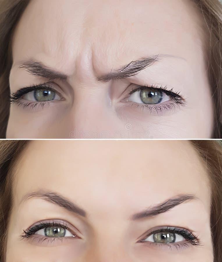Enrugamentos da cara antes e depois imagem de stock royalty free