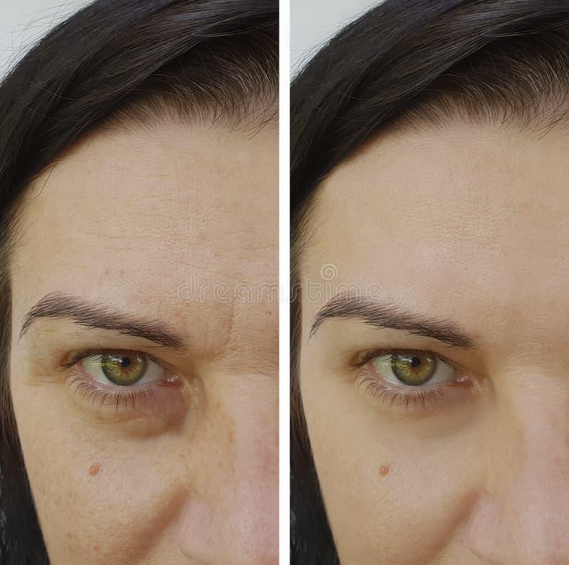 Enrugamentos da cara antes e depois da remoção antienvelhecimento do enchimento imagem de stock