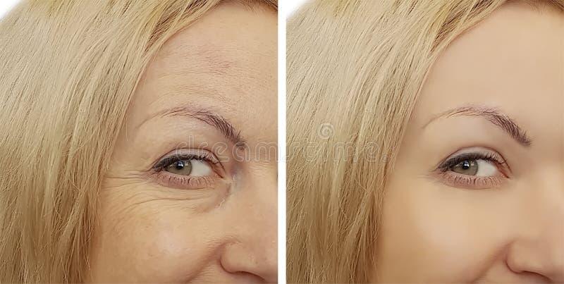 Enrugamentos da cara da mulher antes e depois fotografia de stock royalty free