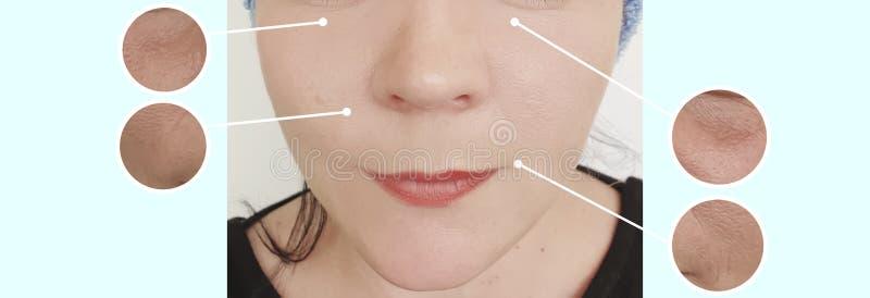 Enrugamentos da cara da mulher antes e depois da colagem de levantamento do tratamento da cosmetologia da correção da diferença fotos de stock royalty free
