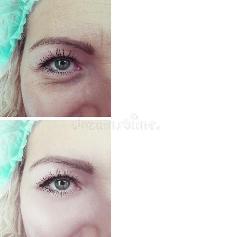 enrugamentos da cara da mulher antes e depois dos procedimentos foto de stock