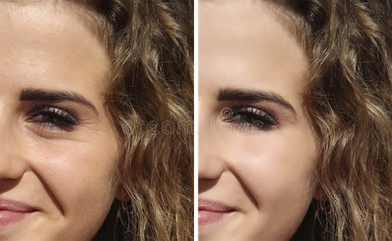 Enrugamentos da menina da cara antes e depois imagem de stock