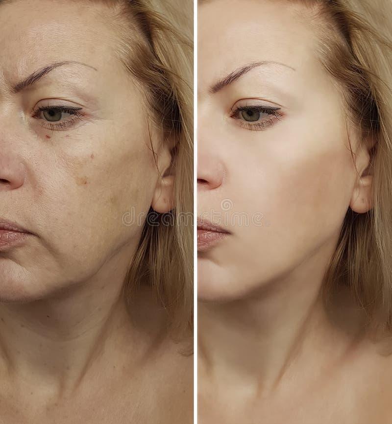 Enrugamentos da mulher da cara antes e depois do revitalização do procedimento imagens de stock