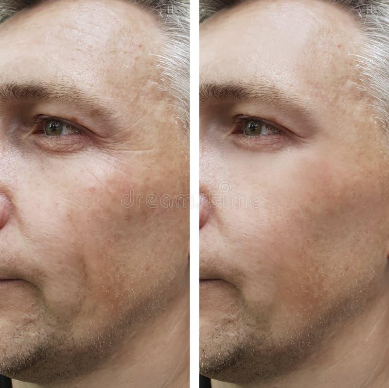 Enrugamentos do homem da cara antes e depois foto de stock royalty free
