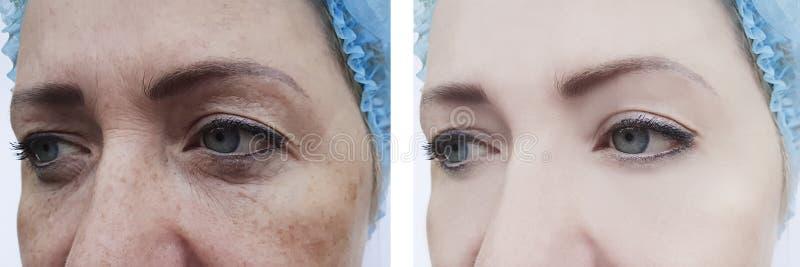 Enrugamentos fêmeas antes e depois dos procedimentos, pigmentação da remoção da inchação da dermatologia imagens de stock