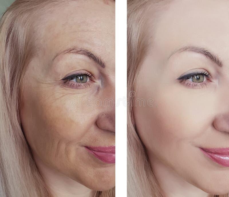 Enrugamentos fêmeas da beleza do olho antes e depois dos tratamentos antienvelhecimento da regeneração da dermatologia fotografia de stock