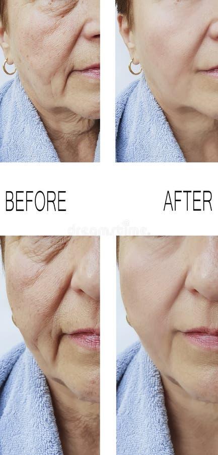 Enrugamentos velhos da mulher antes após o rejuvenescimento de levantamento dos tratamentos da terapia da colagem imagem de stock royalty free
