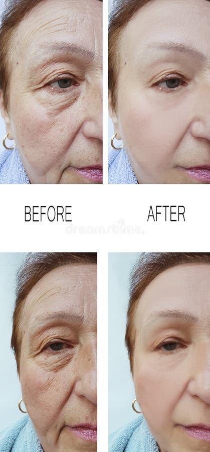 Enrugamentos velhos da mulher antes e depois do rejuvenescimento de levantamento dos tratamentos da terapia da colagem imagens de stock royalty free