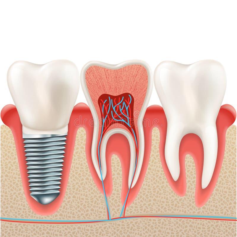 Ensemble d'implant dentaire ENV 10 illustration libre de droits