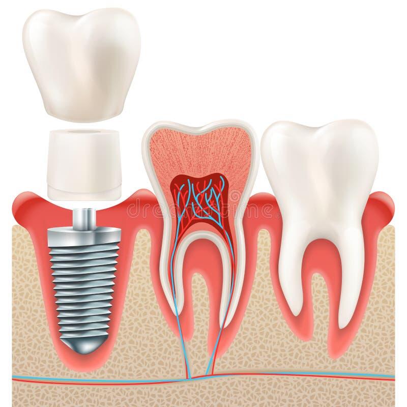 Ensemble d'implant dentaire ENV 10 illustration de vecteur