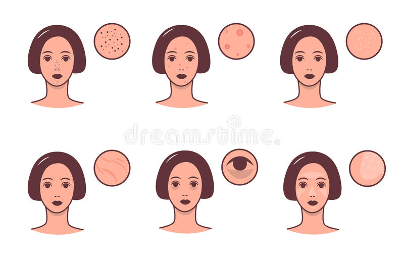 Ensemble de visages femelles avec de divers teints et problème Concept de soins de la peau et de dermatologie Vecteur coloré illustration libre de droits
