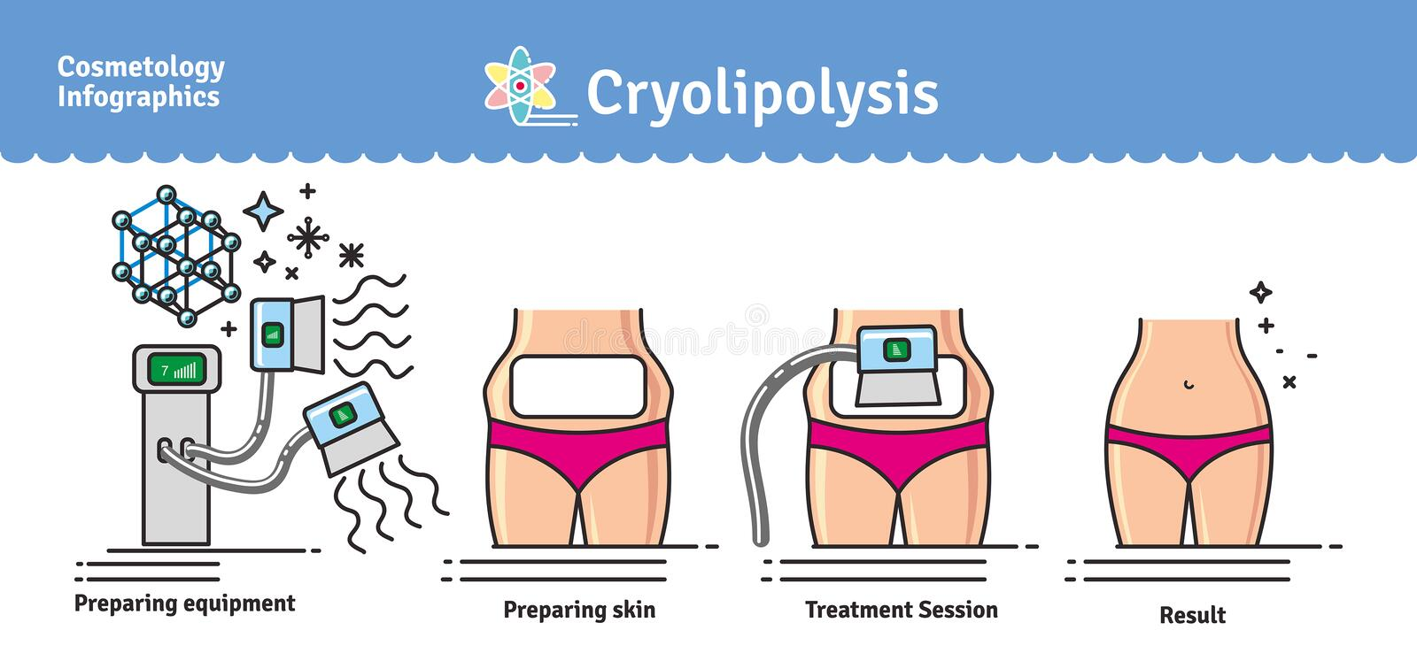 Ensemble illustré par vecteur avec le traitement de Cryolipolysis de cosmétologie illustration libre de droits