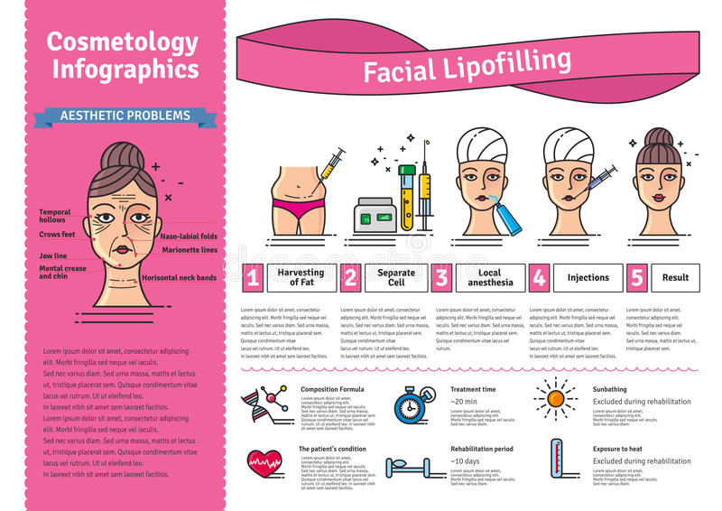Ensemble illustré par vecteur avec lipofilling facial de cosmétologie illustration de vecteur