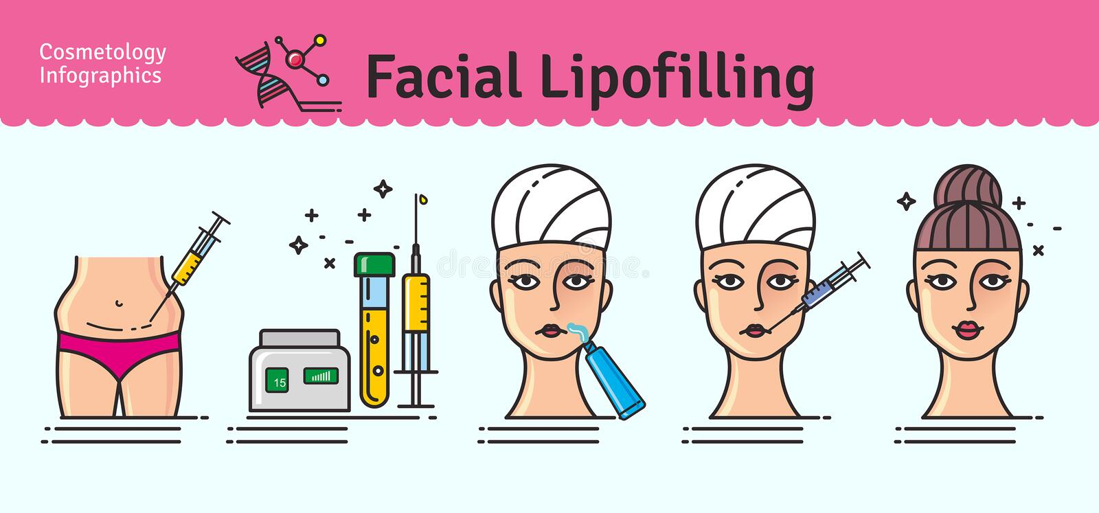 Ensemble illustré par vecteur avec lipofilling facial de cosmétologie illustration libre de droits