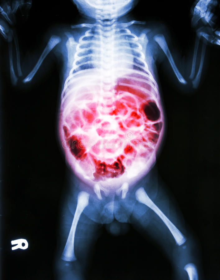 Enteritis (X-ray of sick infant and inflammation of intestine) royalty free stock image