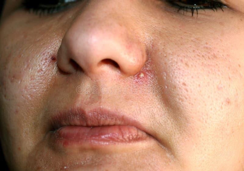 Entflammte Haut des Gesichtes akne Pickel eitrig auf der Nase stockbilder