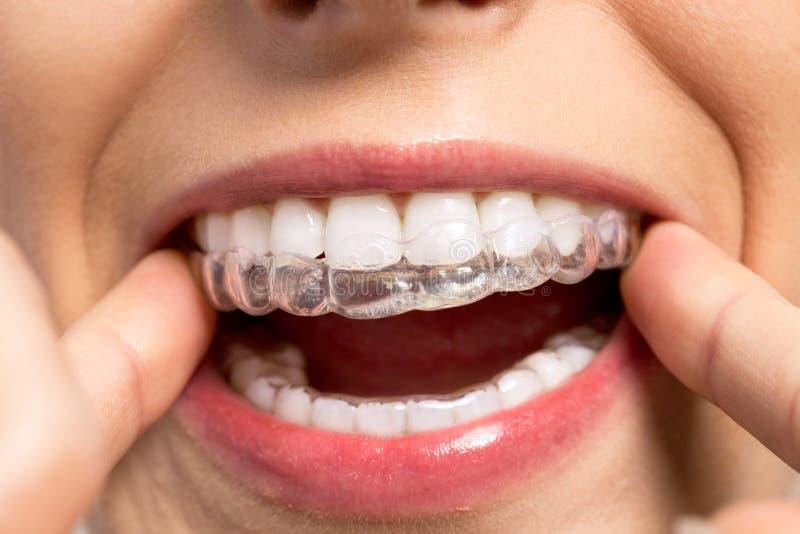 Entraîneur orthodontique de port de silicone images stock